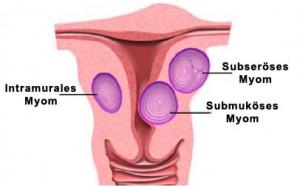 Abbildung: Gebärmutter mit Myomen
